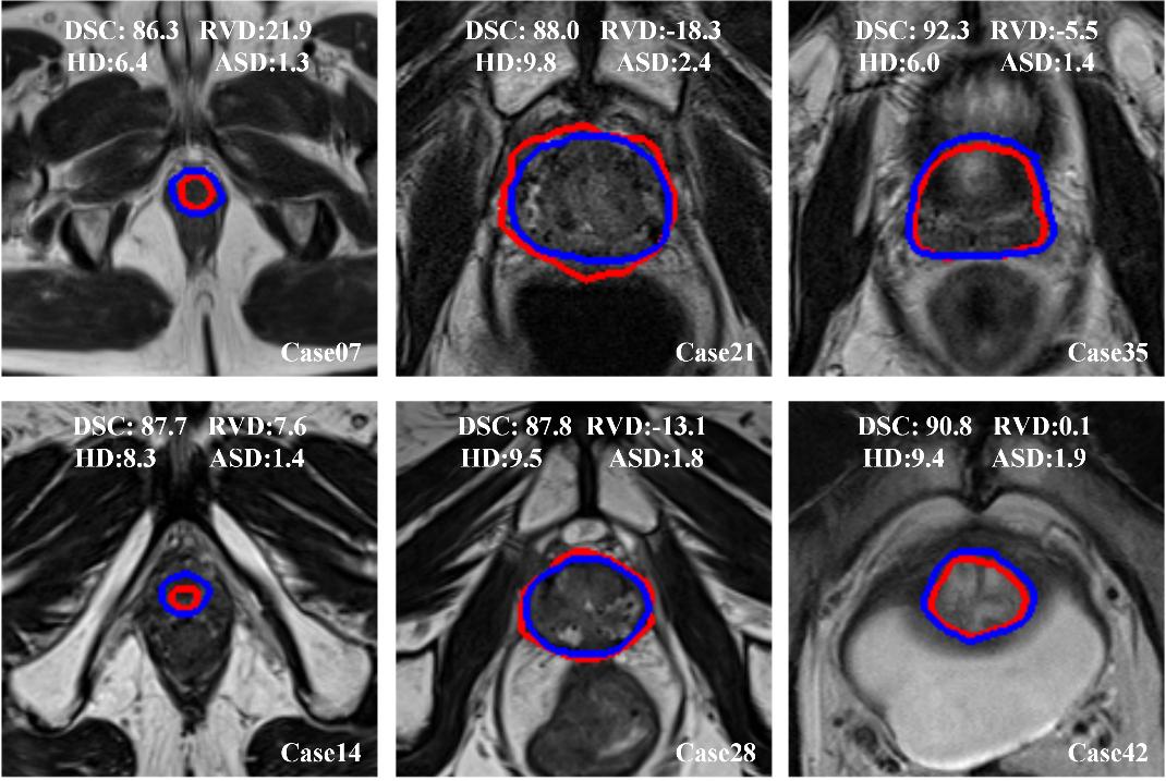 multiparametric mri prostate